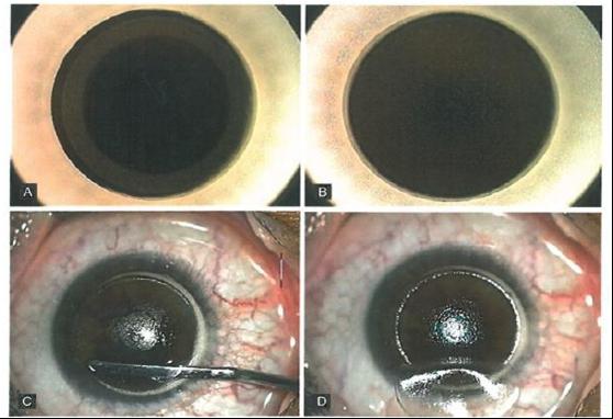 Figura 1. Tempi chirurgici principali del taglio del flap LASIK con femtolaser: fase iniziale (A) e finale del taglio (B), isolamento (C) e sollevamento del flap (D