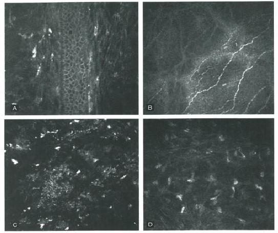 Figura 2. Microscopia confocale su LASIK eseguita con femtolaser ad un mese dal trattamento: (A) epi- thelial ingrowth sul margine del taglio; (B) segni di reinnervazione sub epiteliale; (C) regolarità dell'interfaccia; (D) Stroma posteriore normale