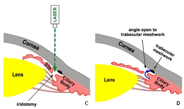 Azione dell'iridotomia laser nel glaucoma ad angola stretto