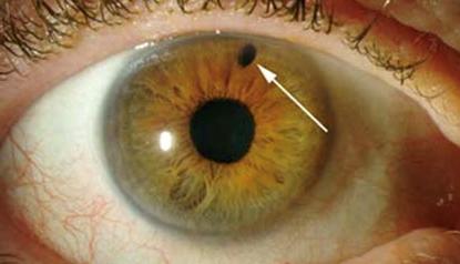 Esempio di iridotomia laser