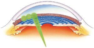Esempio di trattamento laser a livello dell'angolo iridocorneale